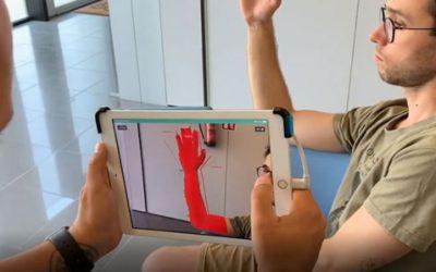 Stampa 3D tutori ortopedici